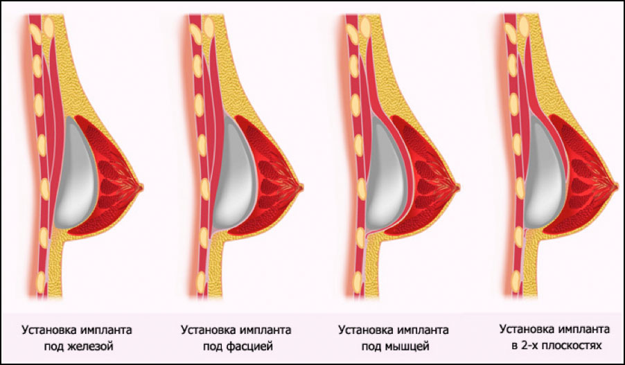 Импланты для груди