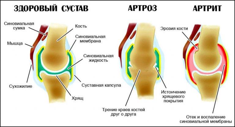 Артрит и артроз в чем различие лечение